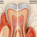10 posljedica loše higijene zuba