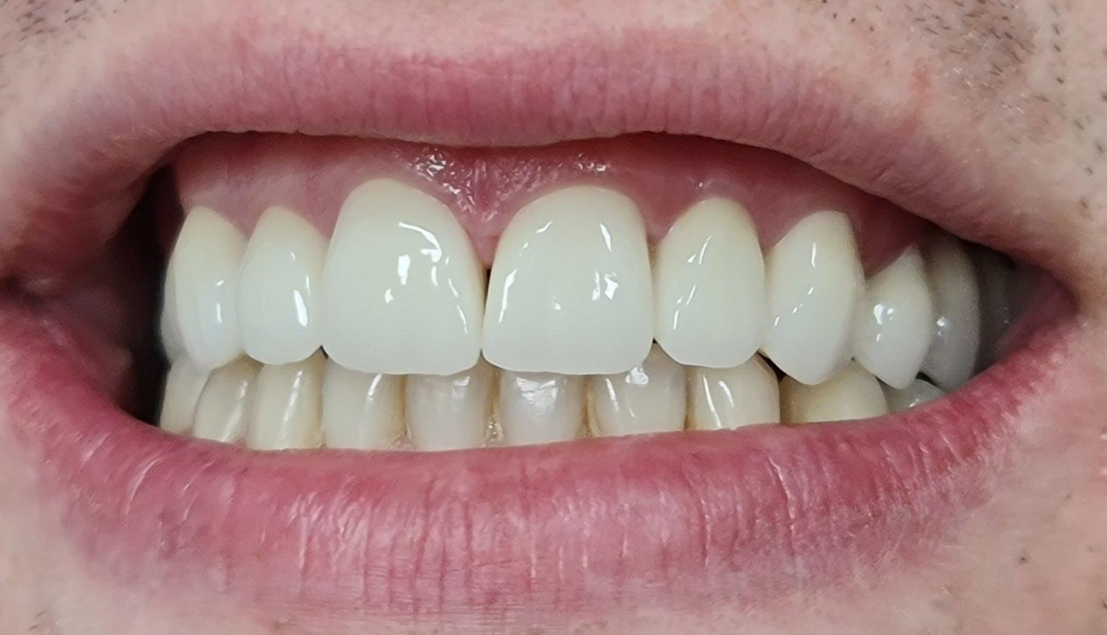 zubiposlije2