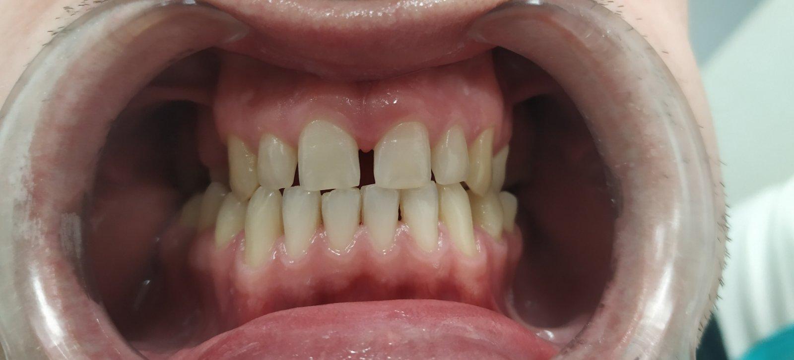 zubiprije1