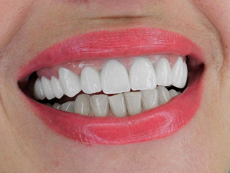 @euro-dental-centar-final-br1-dr-selma