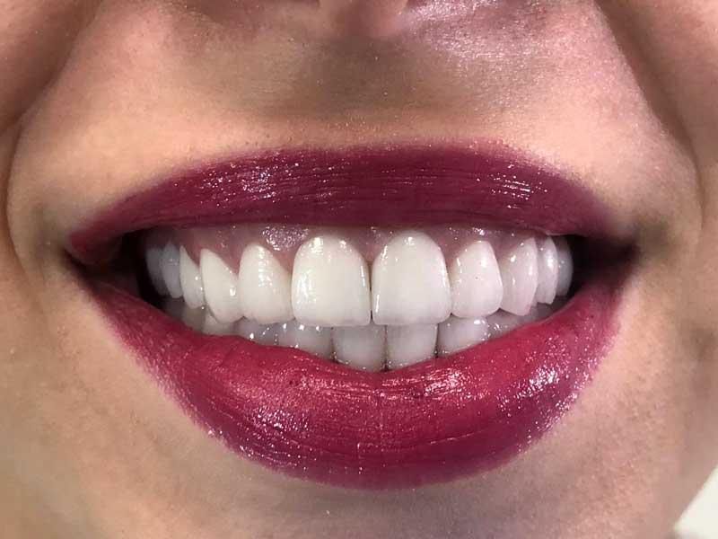 @euro-dental-centar-sarajevo-nasi-radovi-poslije-Aa1