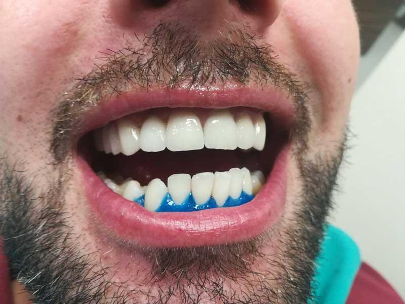 @euro-dental-centar-sarajevo-nasi-radovi-poslije-D