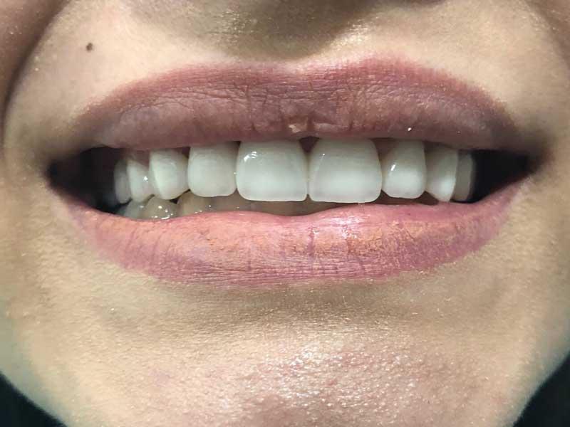@euro-dental-centar-sarajevo-nasi-radovi-poslije-F