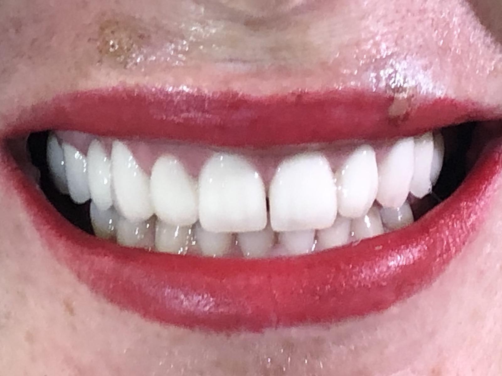 @euro-dental-centar-sarajevo-nasi-radovi-poslije-I