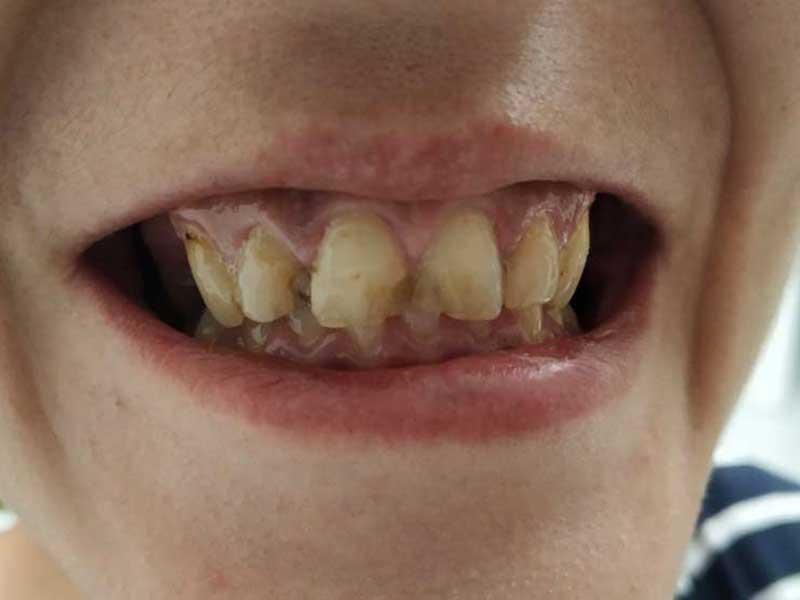 @euro-dental-centar-sarajevo-nasi-radovi-prije-C