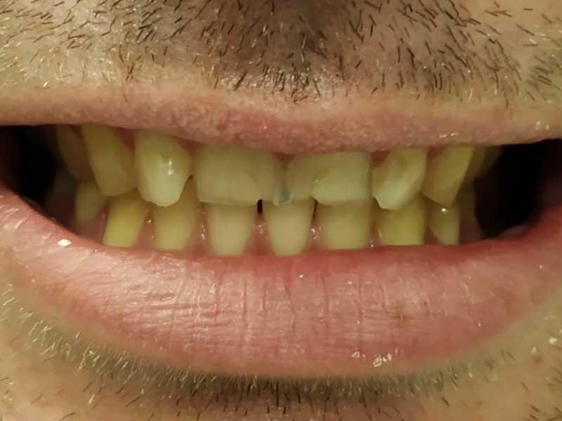 @euro-dental-centar-sarajevo-nasi-radovi-prije-H